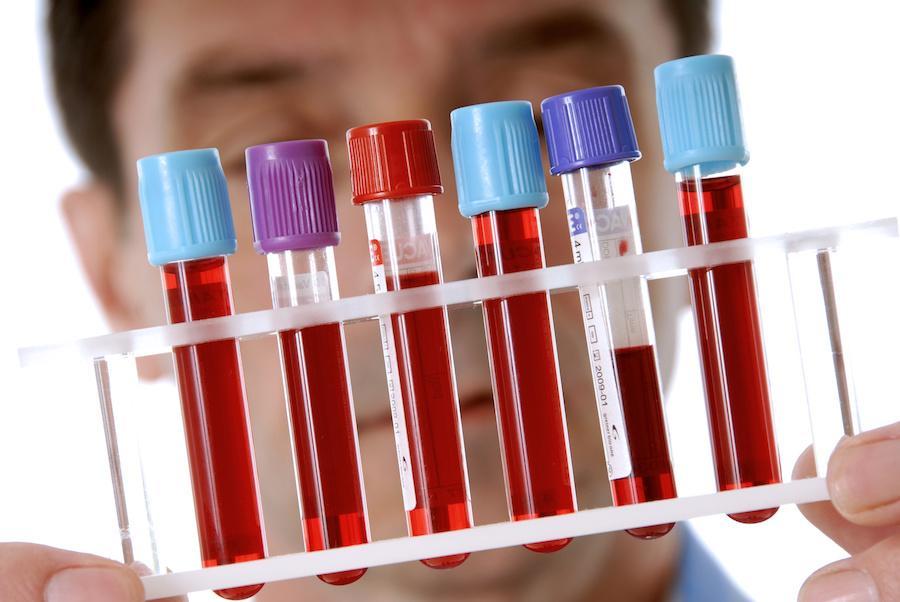Важный компонент диагностики заболевания - биохимический анализ крови