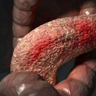 Хронический панкреатит – современный взгляд на проблему