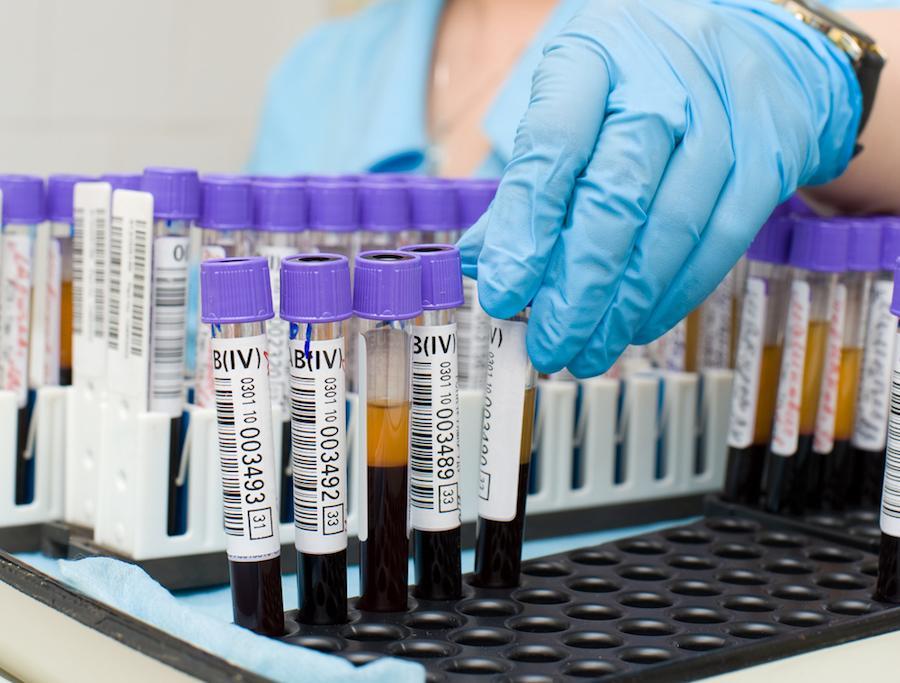 Биохимия крови для диагностики реактивного панкреатита
