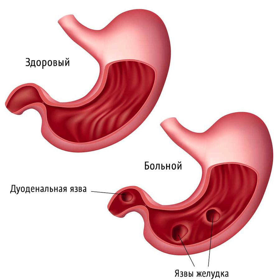 Язва желудка может стать причиной развития женского панкреатита