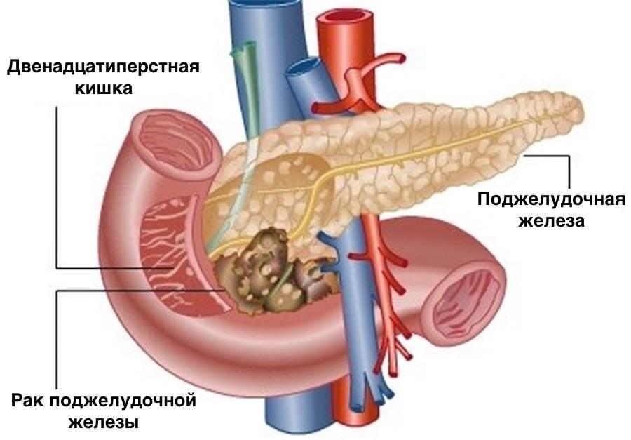 Схематичное изображение ракового процесса поджелудочной железы