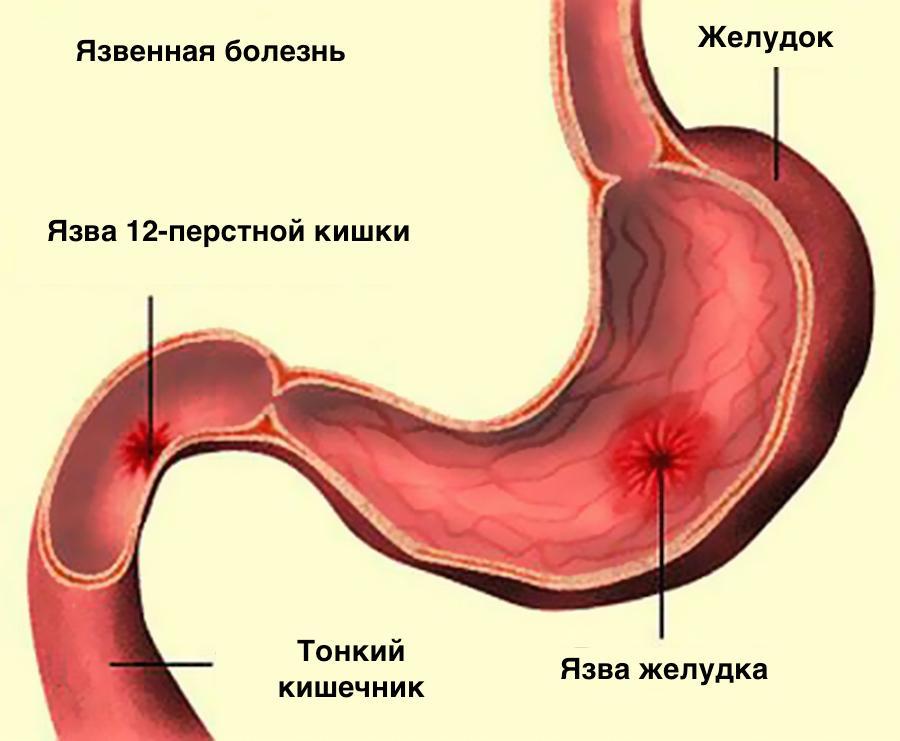 Схема развития язвенной болезни