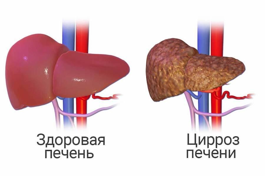 Диффузно фиброзное изменение поджелудочной железы thumbnail
