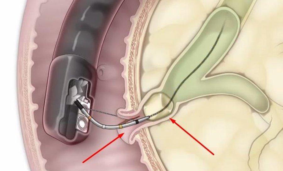 Эндоскоп в поджелудочной железе