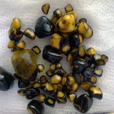 Камни в поджелудочной железе - причины, диагностика, лечение