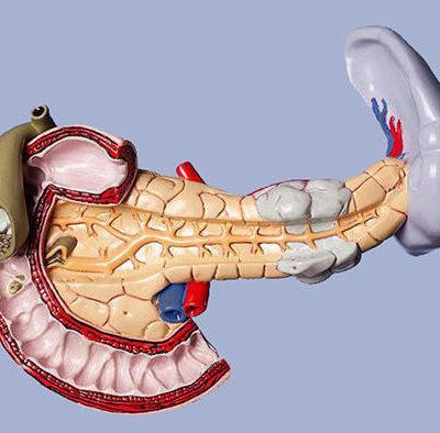 Стеатоз поджелудочной железы: особенности течения и диагностики