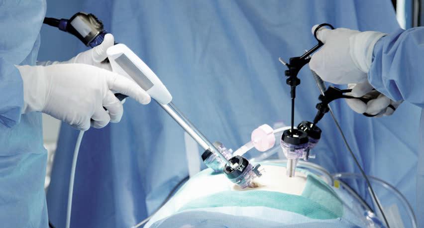 Лапароскопия с электрокоагулятором